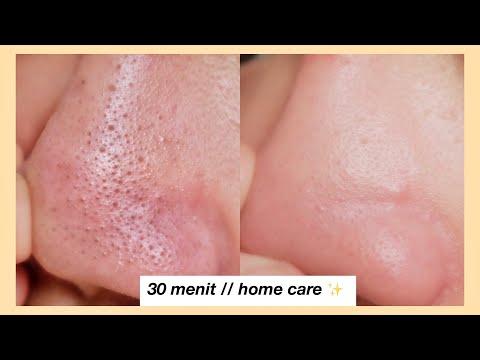 Cara Menghilangkan Komedo // gentle for skin (no pore strip) - YouTube