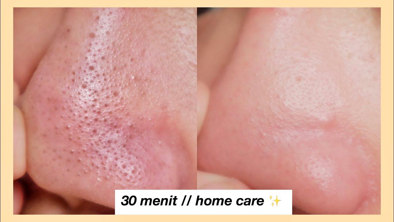 Cara Menghilangkan Komedo // gentle for skin (no pore strip)