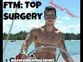 Transgender Top Surgery at the McLean Clinic