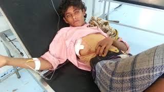 شاهد بالفيديو..إصابة ثلاثة مواطنين برصاص وقذائف مليشيات الحوثي في مديرية حيس