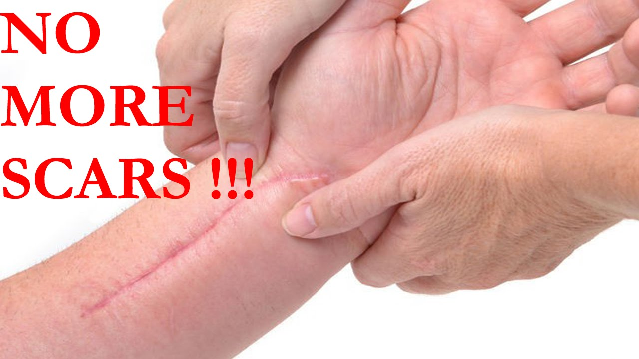 How To Get Rid Of Scars Tissue How To Remove Scars