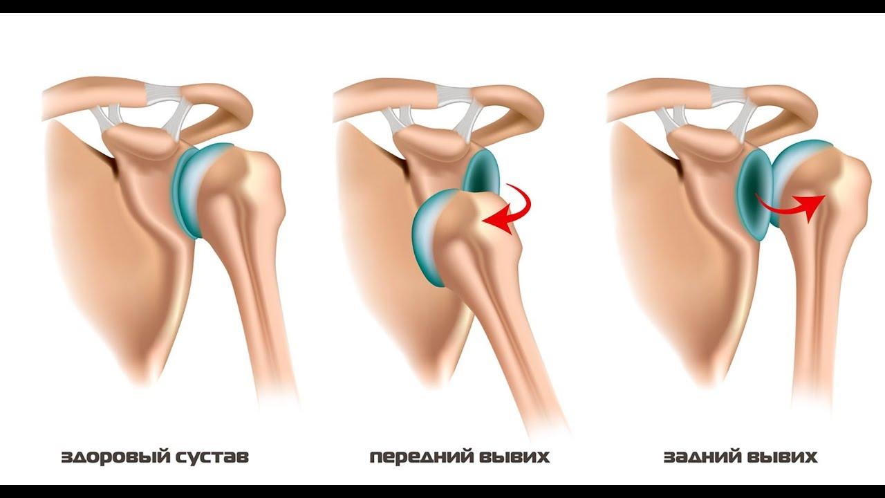 Что делать при вывихе плечевого сустава