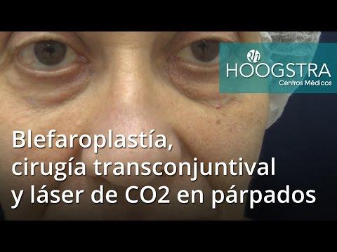 Blefaroplastía, cirugía transconjuntival y láser de CO2 en párpados (16131)