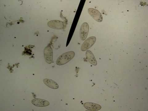 microscopic organisms in pond water