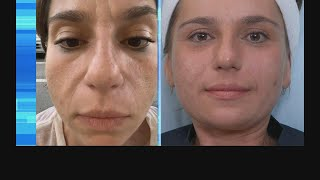 Watch Our Galvanic Facial Loved by Celebrities like Hilary Duff and Mandy Moore