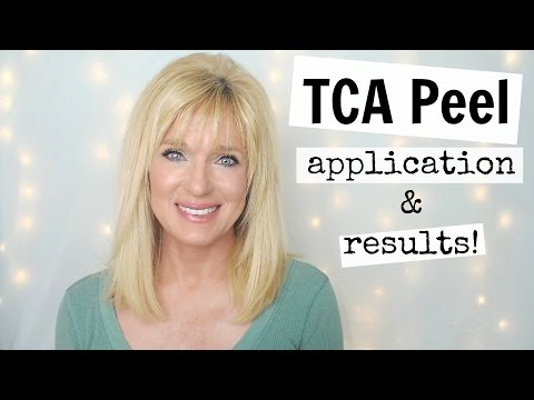 TCA Peel Application and Entire Peeling Process!