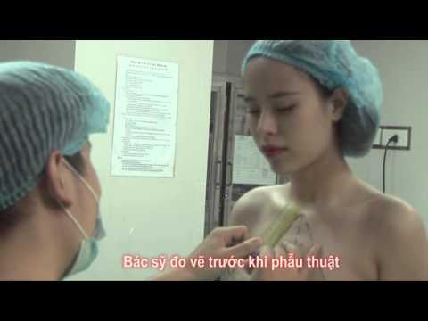 Nâng ngực nội soi với Diệu Vi