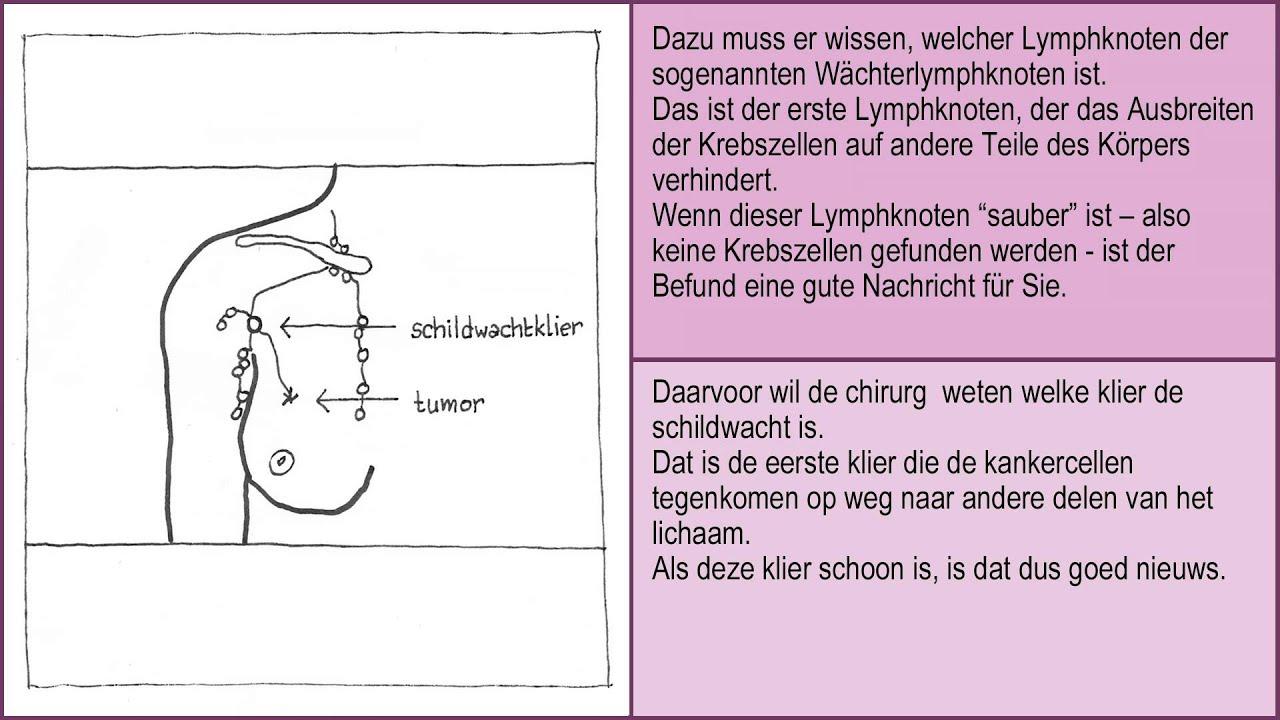 Operation - Die Funktion der Lymphknoten 1/2. - YouTube