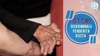 KejamnyaDuniaTTV   #Kusta   #PenyakitMenular   Dok : Kejamnya Dunia Trans TV =======================.