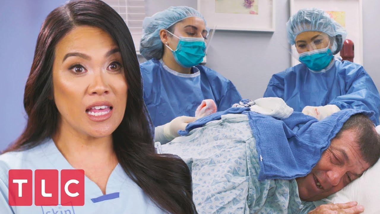 Dr. Lee Removes Paul's Giant Hump   Dr. Pimple Popper