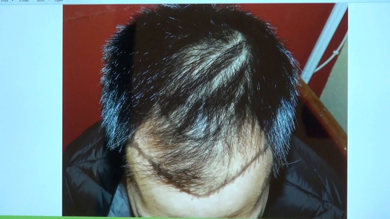 how to fix balding hair