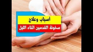اسباب وعلاج سخونة القدمين اثناء الليل | اسباب حرارة القدم قبل النوم