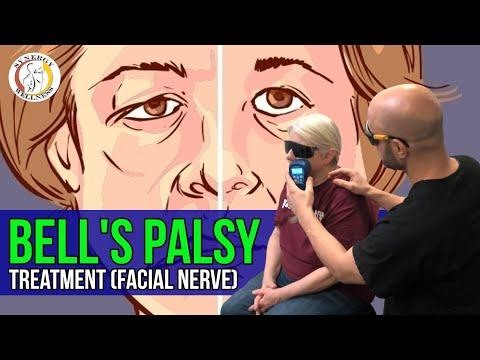 Facial Nerve Lesions.