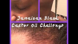 jamaican black castor oil before after natural hair grow edges eyebrows heal dry scalp