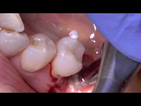 Easy-graft™ application Scarsdale Dental von YouTube · Dauer:  4 Minuten 1 Sekunden
