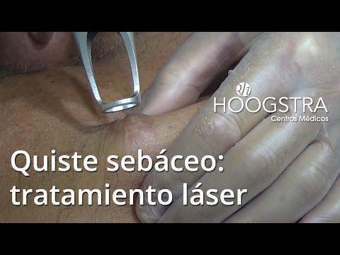 Quiste sebáceo: tratamiento láser (15021)