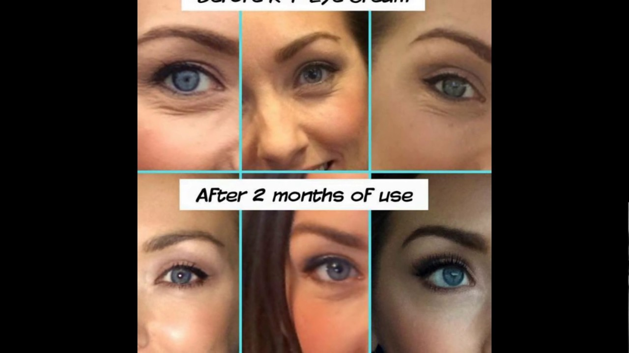 Multifunction Eye Cream Before And Afters Youtube