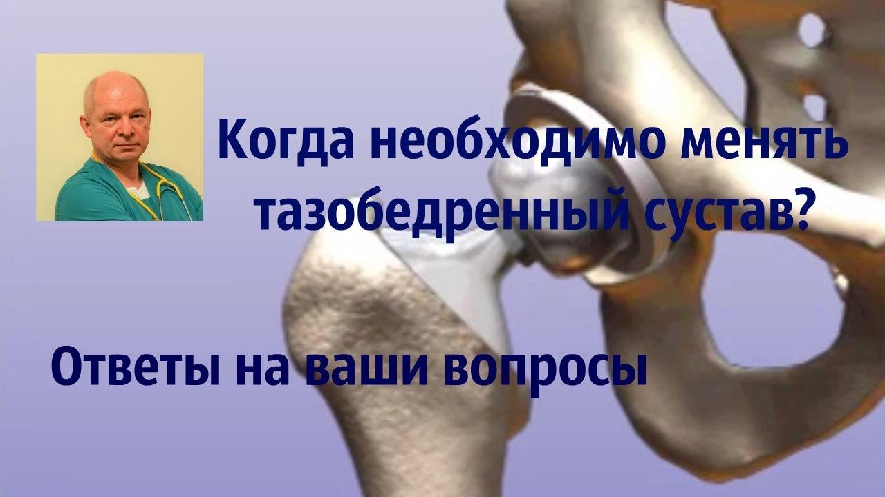 артроз тазобедренного сустава без операции Вам попробовать поискать