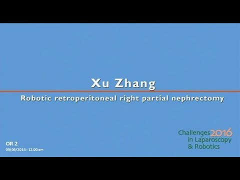CILR 2016 - Xu Zhang - Robotic retroperitoneal right partial nephrectomy