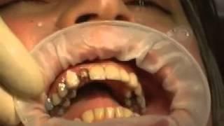 Live: Kronenabnahmenzange für schmerzlose Zahnkronen Entfernung