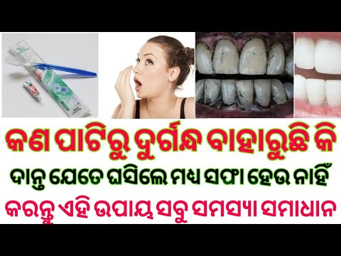 Best Teeth Whitening Toothpaste In India Best Toothpaste For Whitening Teeth In India Youtube