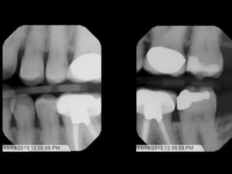 Tips and Tricks for Bitewing X-Rays