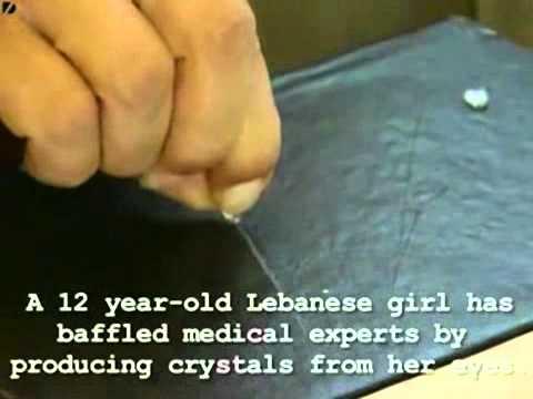 Video  Cô gái khóc ra… đá   Phi thường   kỳ quặc