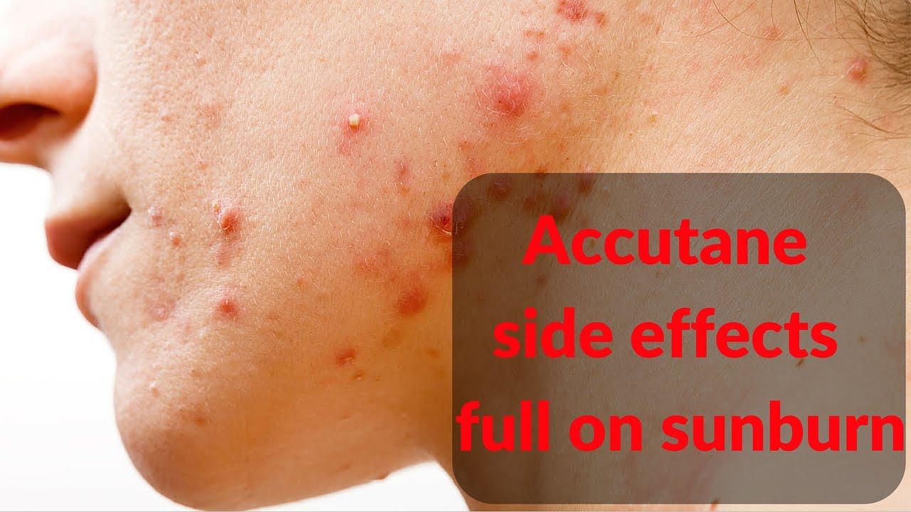 Accutane side effects- sunburn - YouTube