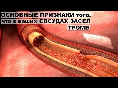 Как предотвратить тромбы в организме