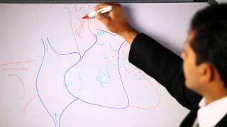 VSD - Ventricular Septal Defect   Dr. Benedict Raj - Paediatrics Cardiac Surgeon