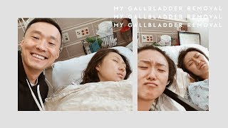 My Gallbladder Removal Experience
