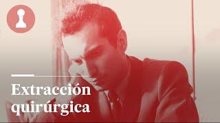 AJEDREZ | Extracción quirúrgica de Tal | El Rincón de los Inmortales