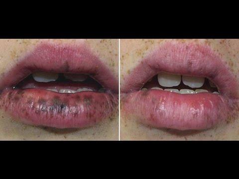 Alex TriVantage Princeton NJ: tattoo removal, brown age spot removal,  melasma treatment