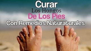 Curar y Quitar LOS HONGOS DE LOS PIES Con Remedios Caseros