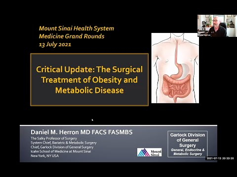 Critical Update in the Surgical Treatment of Obesity and Metabolic Disorders