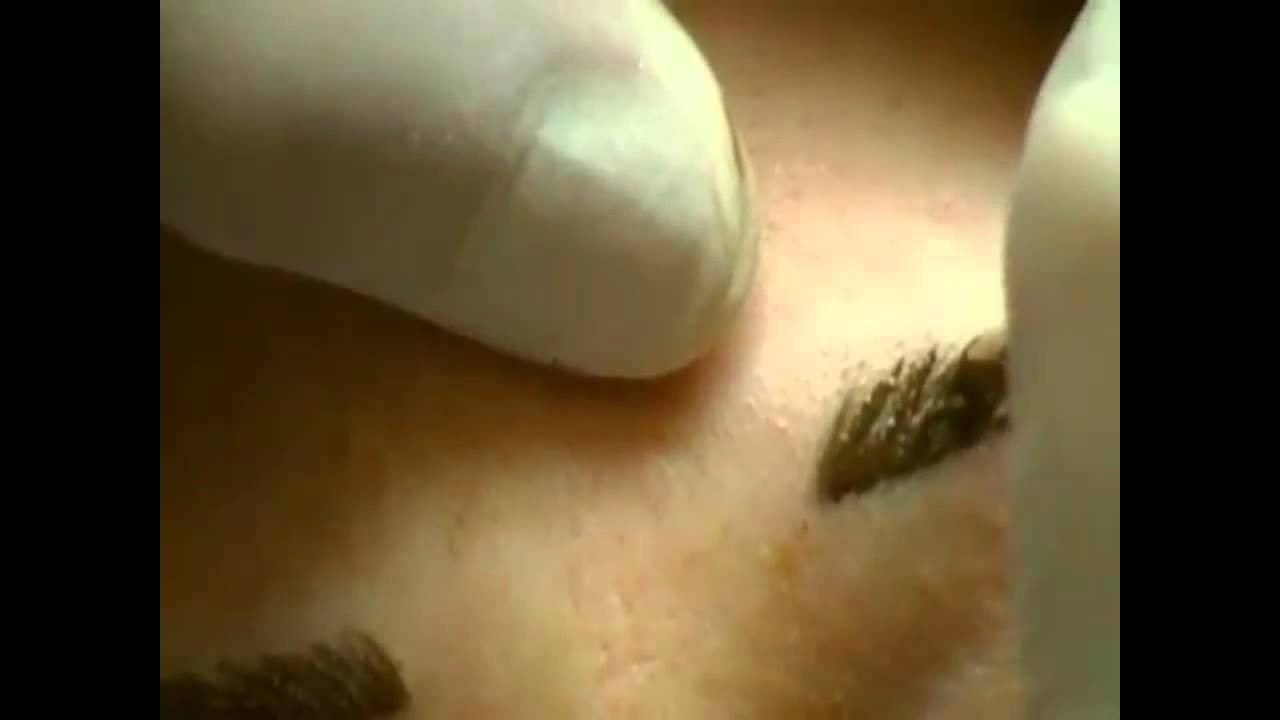 Eyebrow Tattooing Youtube