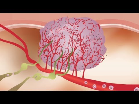 Colorectal Cancer and the Role of Angiogenesis in Cancer Development