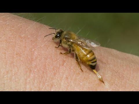 Укус пчелы, что делать, если ужалила пчела