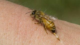 Укус пчелы. ПРОВЕРЬТЕ РЕАКЦИЮ