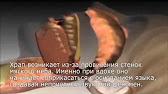 Эндоскоп для Автосервиса Adrolook - YouTube