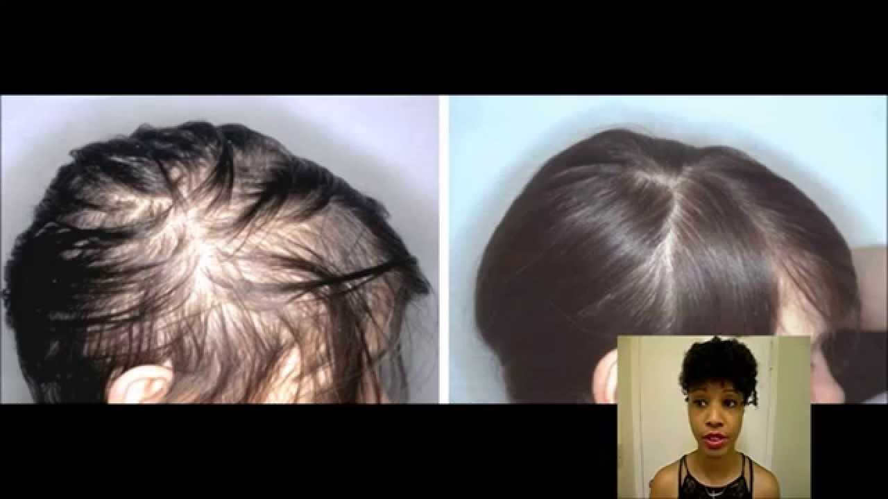 Natural Hair Loss Treatment Check Your Iron Level