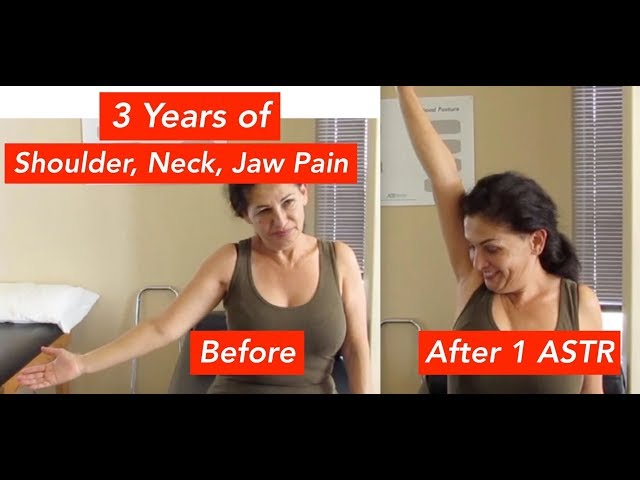 3 Years of Shoulder Pain Relieved In No time (INSANE RESULTS!!)