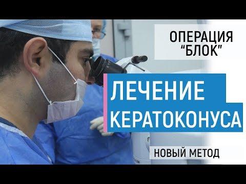 Лечение кератоконуса. Самая эффективная методика БЛОК. Сравнение, преимущества, все об операции.