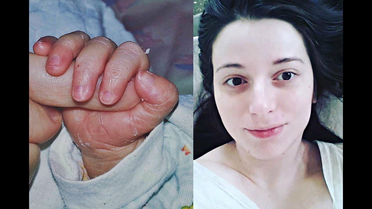Рожать с анестезией или без