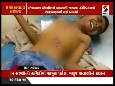 Child Injured Due to Mobile Explosion in Songadh, Gujarat