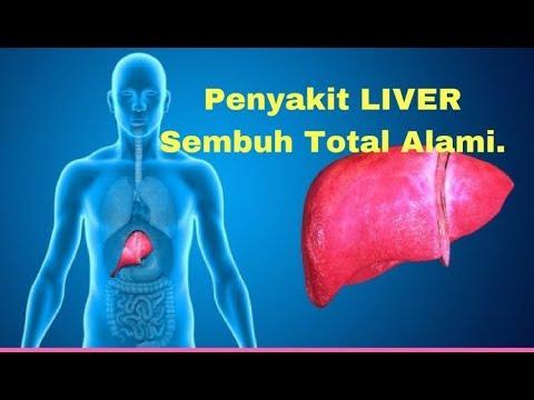 penyakit-liver-sembuh-total-alami