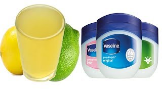How To Get Clear Acne Glowing Skin w! Vaseline Lemon Juice Beauty Life Hacks Every Girls Should Know