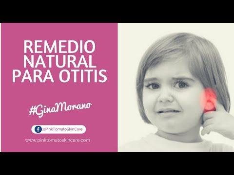 remedios naturales para la otitis aguda