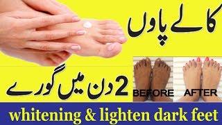 Whitening Feet Tips In Urdu | Paon Ko Gora Karne Ka Garelu Nusha | پاوں کی حفاظت کا نسخہ