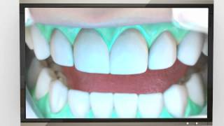 Tell me about teeth whitening bleaching Thumbnail